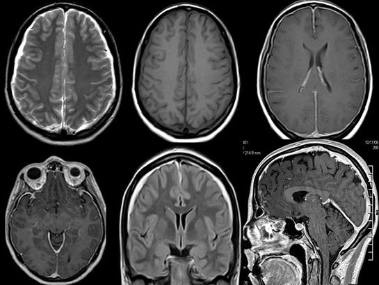 Beyin kanseri semptomunun ilk belirtisi nedir